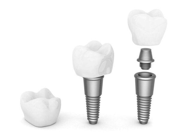 implant-dentar-pret-brasov
