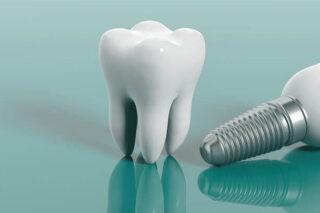 implant-dentar-brasov